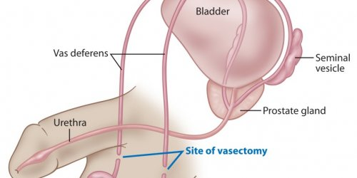 Vasectomy and prostate cancer link myth dispelled