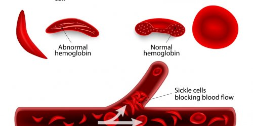 Sickle Cell Disease and Erectile Dysfunction in Males