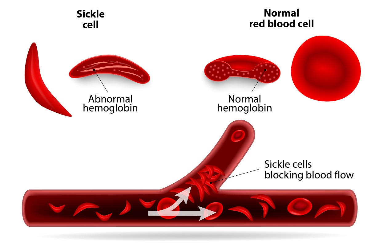 Sickle cell disease and erectile dysfunction in males my types of anemia pooptronica