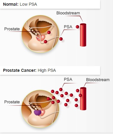 Prostate-Specific Antigen (PSA) Guide - My Canadian